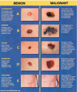Melanoma Type Certified Dermatology