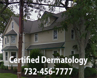 nj-dermatologist-somers point